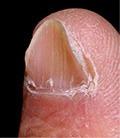 El ungüento del hongo entre los dedos de los pies el precio
